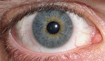 Clear Iris Photo Example