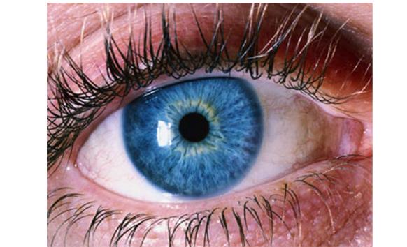 iridology - Dr Monika Stransky