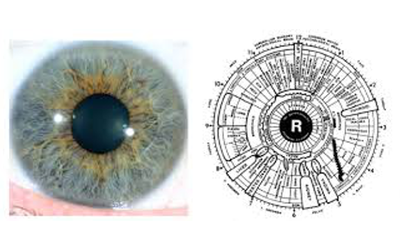 my iridology image 6
