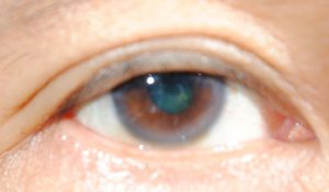 unclear eye photo example
